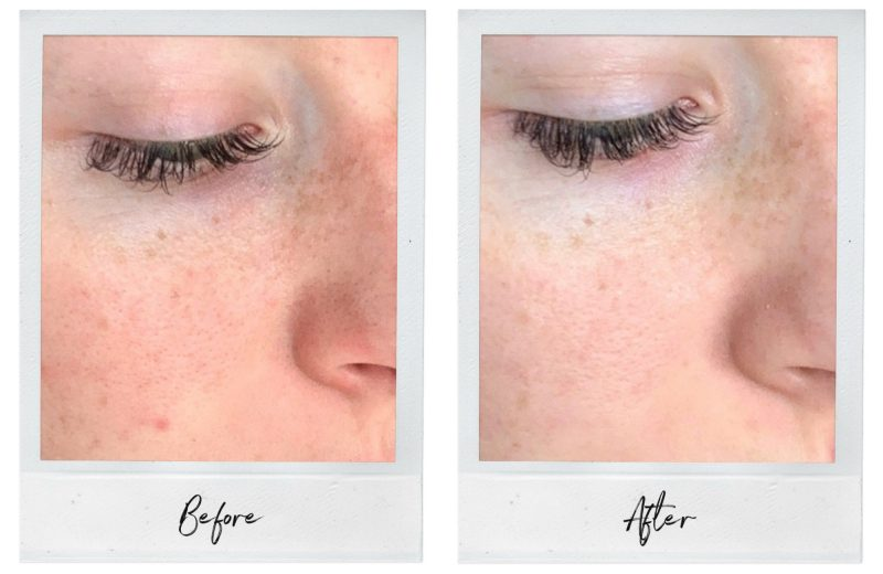 Before and After HydraFacial